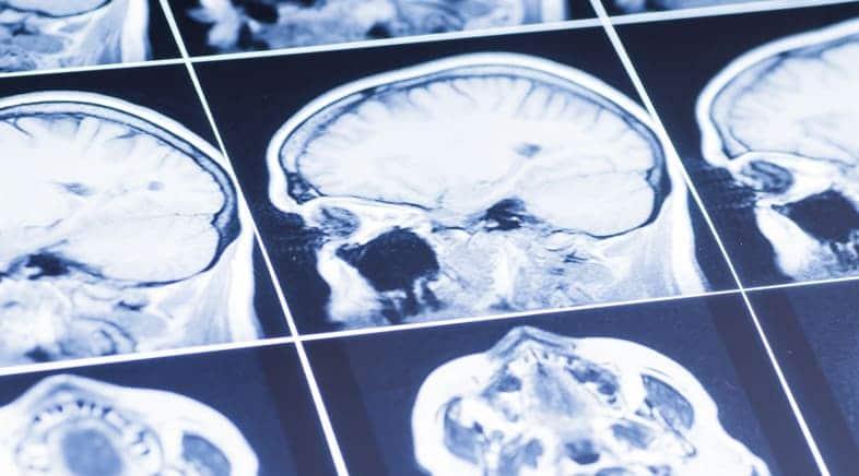 Traumatic Brain Injury Lawyers Maryland
