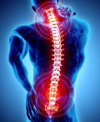 SSDI for Back Pain